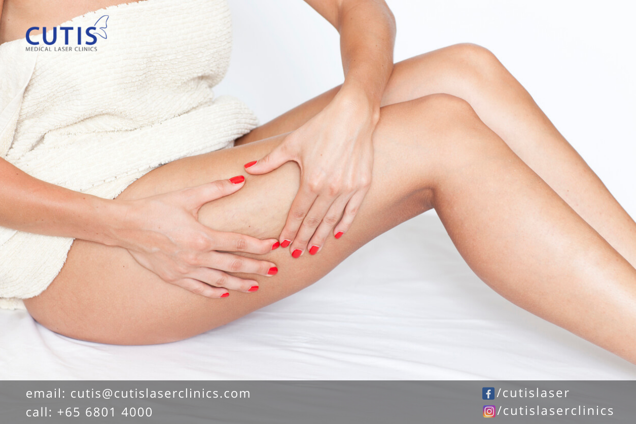 What are the Different Types of Cellulite?