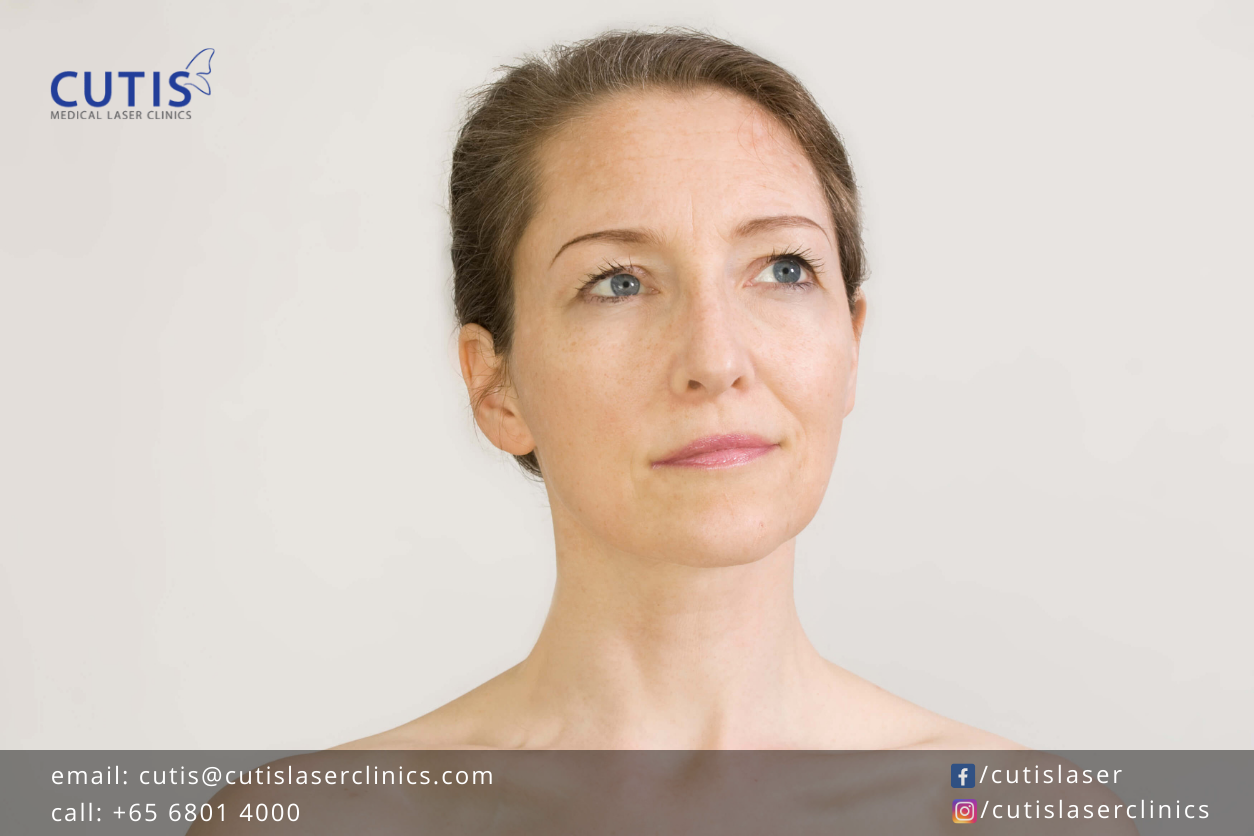 Brown and Gray Skin Patches: Does Melasma Resolve on Its Own?