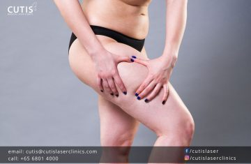 The Aesthetic Treatment That Can Improve Cellulite and Stretch Marks